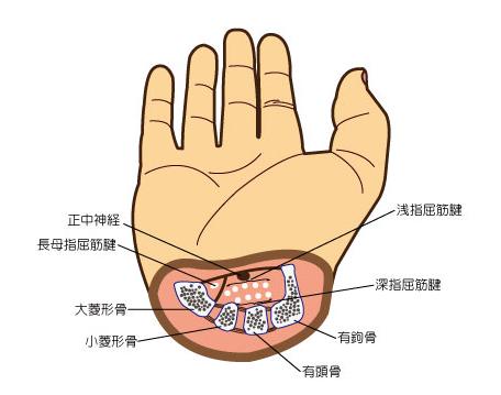 手 根 管 症候群 手根管症候群 - 08. 骨、関節、筋肉の病気